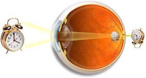 Отзывы как улучшить зрение без очков